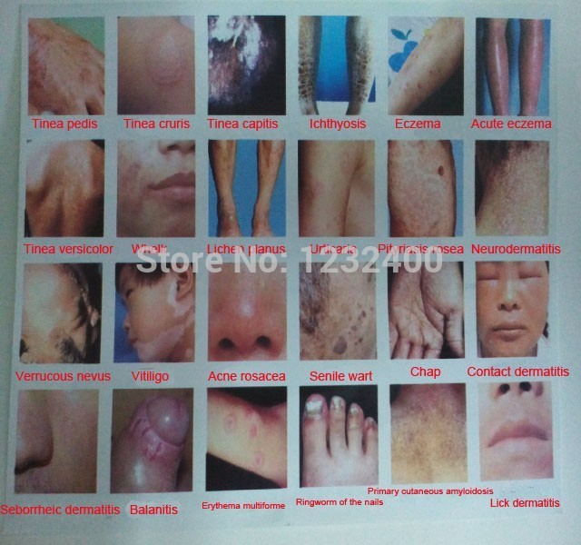 100-traditional-chinese-medicine-cream-stubborn-font-b-skin-b-font-disease-Potent-ointment-Brothers-tinea.jpg