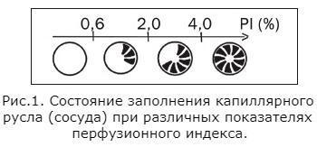 Состояние заполнения капиллярного русла (сосуда) при различных показателях перфузионного индекса..jpg