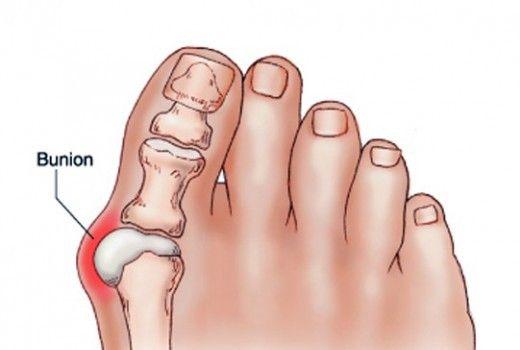 Шишка STOP крем от шишек на больших пальцах ног, шишка стоп, крем шишка стоп - фото get-rid-of-bunions-naturally-with-this-simple-but-powerful-remedy-520x350