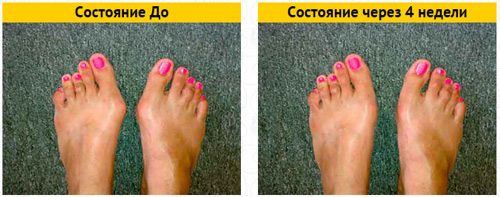Шишка STOP крем от шишек на больших пальцах ног, шишка стоп, крем шишка стоп - фото o1