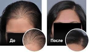 Ultra Hair System
