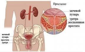 Капли Anti Prostatit Nano - от простатита (Анти Простатит Нано