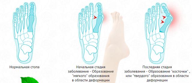 Шишка STOP крем от шишек на больших пальцах ног, шишка стоп, крем шишка стоп - фото шишка стоп
