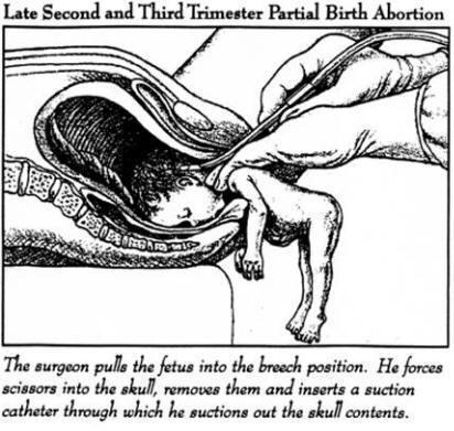 Можно ли делать аборты: опыт гинеколога - фото делать ли аборт